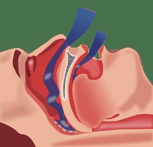 Snoring & Sleep Apnoea Albury